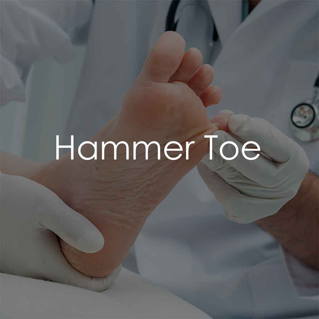 Services - Hammer Toe