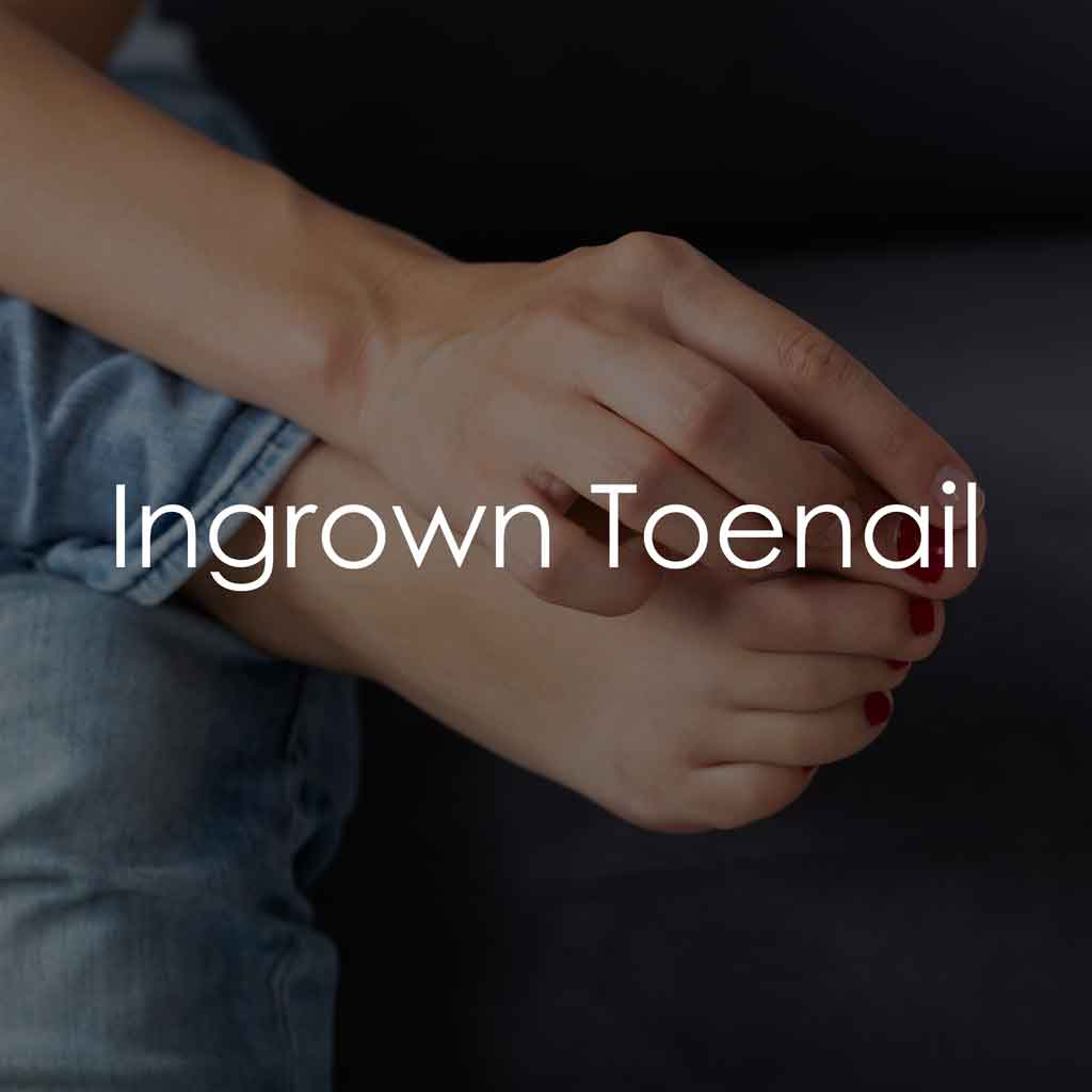 Services - Ingrown Toenail